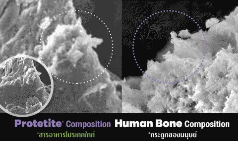 bone-protetite-compare